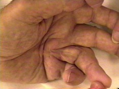 Dupuytren Contracture Severe