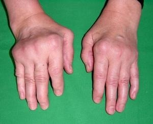 Rheumatoid Arthritis of Hand Photo